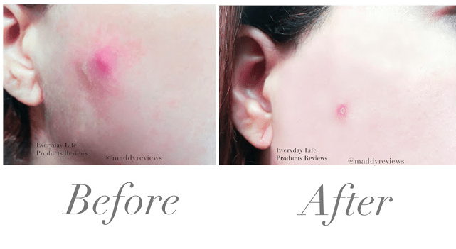 Neostrata-Glycolic-wash-before-and-after