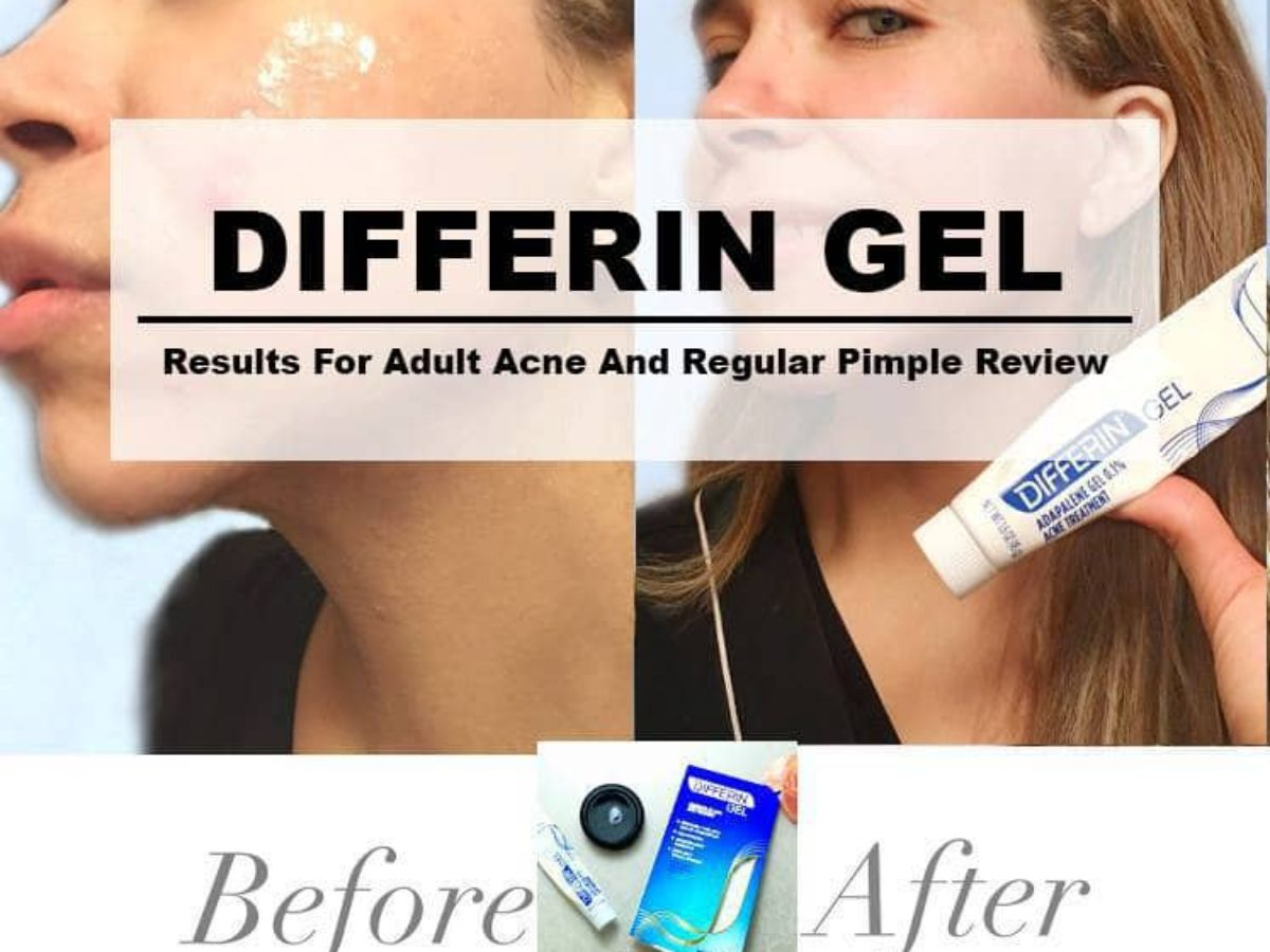 Differin Gel Results For Adult Acne And Regular Pimple Review